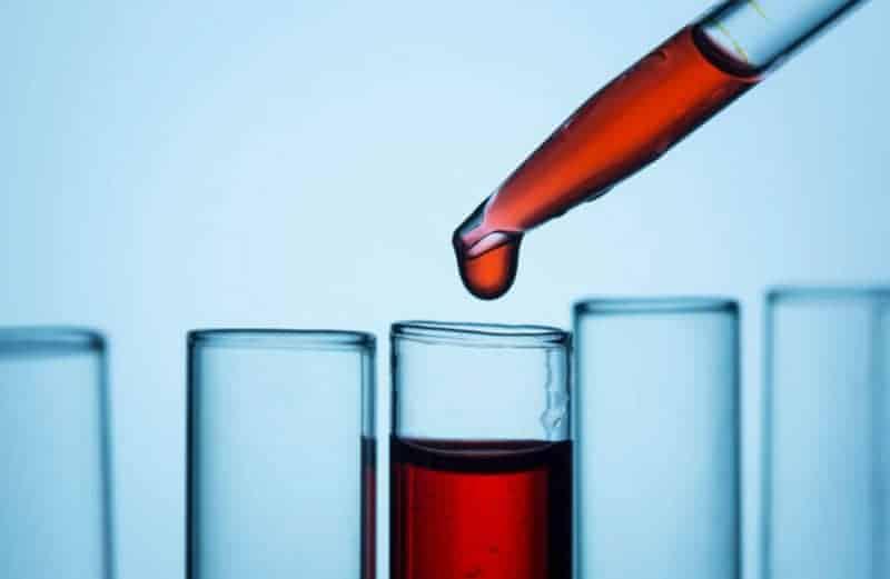 Avsnitt 24 Födoämnesintolerans och överkänslighet – vad säger blodproverna (IgG-tester)?